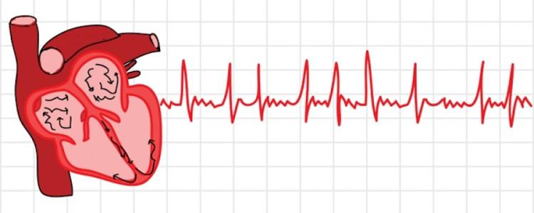 ЭКГ диагностика фибрилляции предсердий