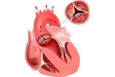 Диагностика аортального стеноза