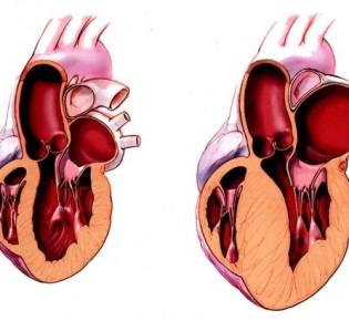 Гипертрофия левого желудочка (ГЛЖ)