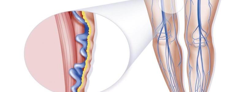 Хронические заболевания вен