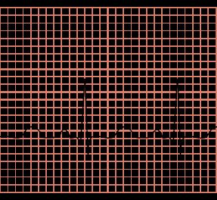 Нарушения автоматизма синусового узла