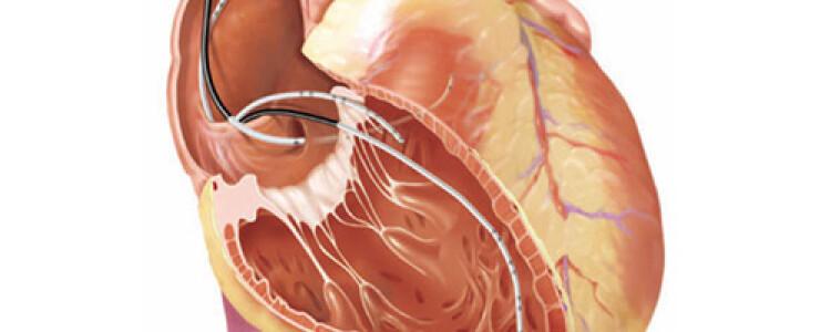 Электрофизиологическое исследование сердца (ЭФИ)