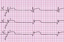 Инфаркт миокарда - стадии развития и локализация