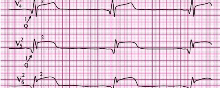 Инфаркт миокарда — стадии развития и локализация
