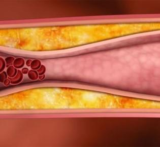 Атеросклероз — риски развития, патогенез, диагностика