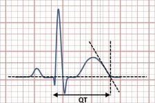 Удлиненный QT-интервал