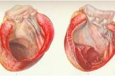 Аневризма левого желудочка