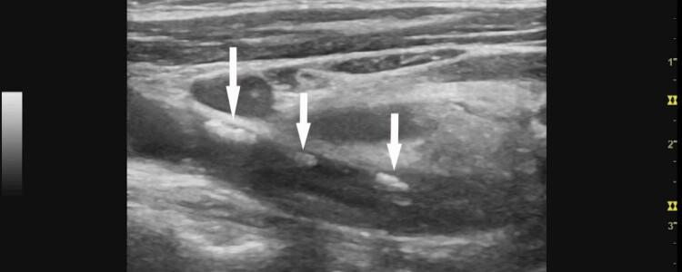 Атеросклеротические бляшки в сосудах шеи