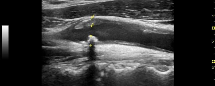 Атеросклеротическая бляшка в бифуркации ОСА до 60-65%