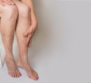 Динамика развития хронической венозной недостаточности