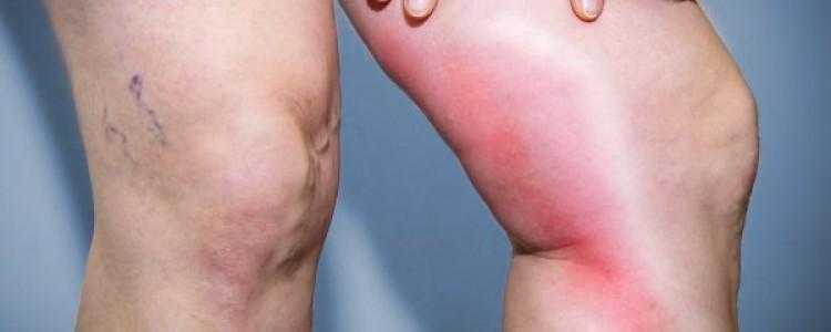 Тромбофлебит или варикофлебит — диагностика и лечение