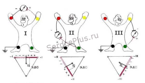 Стандартные электроды ЭКГ