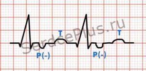 узловой ритм с преждевременным возбуждением желудочков
