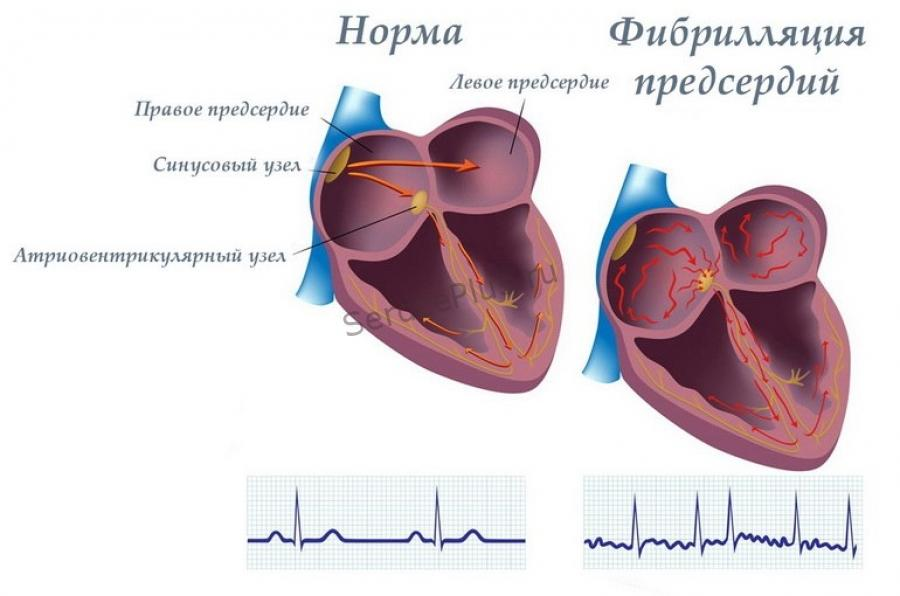 Лечение фибрилляции предсердий
