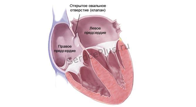 Малые аномалии сердца