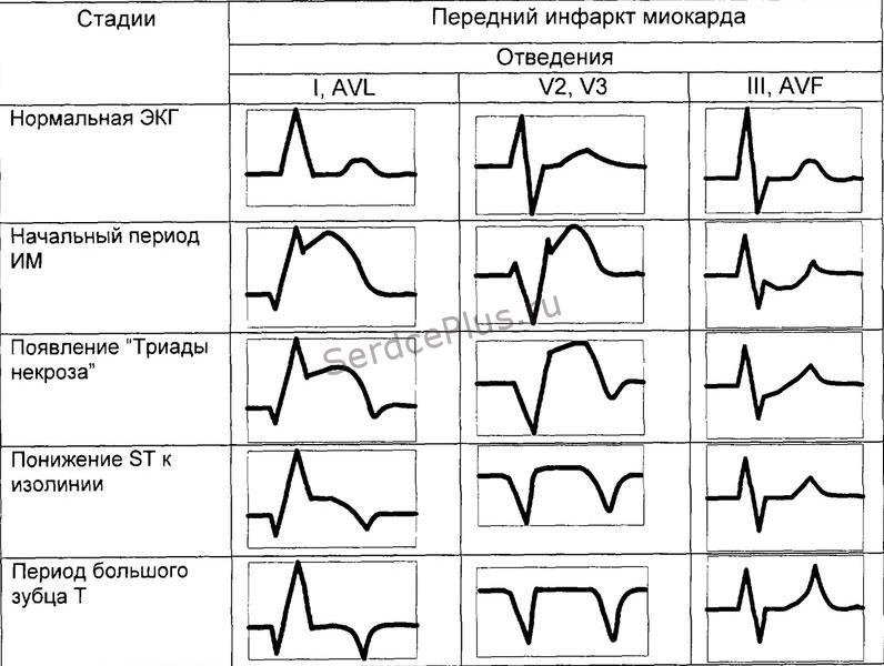 Динамика инфаркта миокарда на ЭКГ