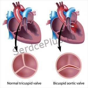 Диагностика аортальной недостаточности