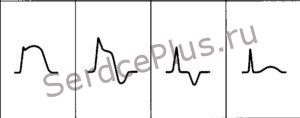 Инфаркт миокарда-стадии развития и локализация