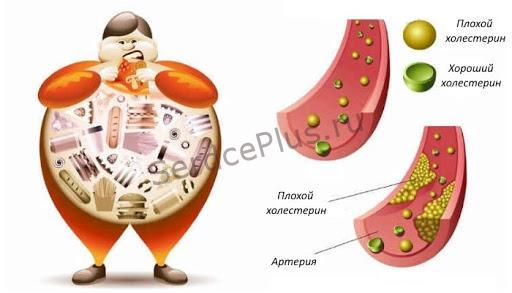 Про холестерин понятным языком