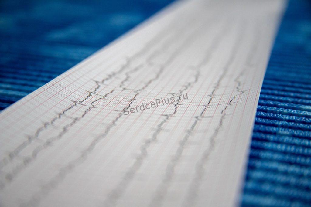 Как проходит процедура эхокардиографии?