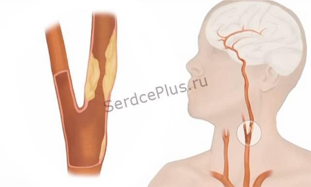 Атеросклероз - риски развития,патогенез, диагностика