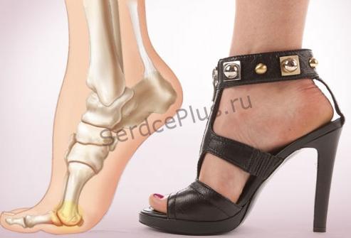 Почему нельзя носить обувь на высоких каблуках?