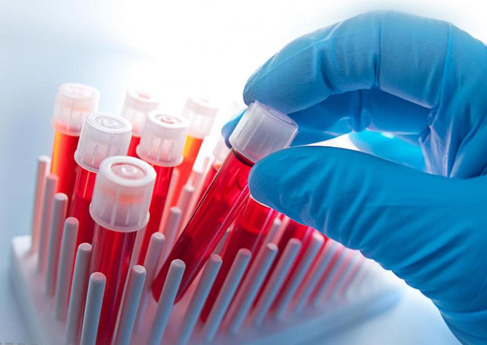 Что советуют врачи для лечения атеросклероза?