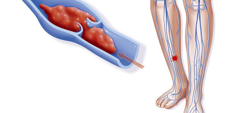 Тромбофлебит или варикофлебит - диагностика и лечение