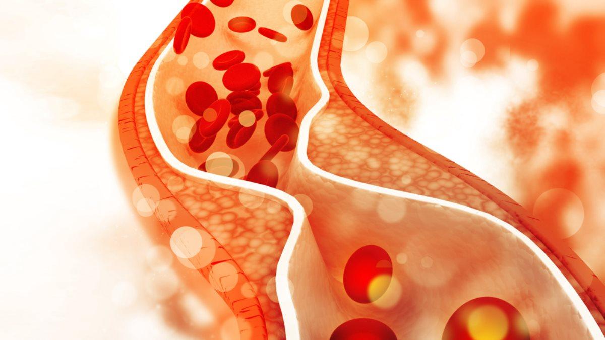 Баланс холестерина. Для чего холестерин нужен организму?