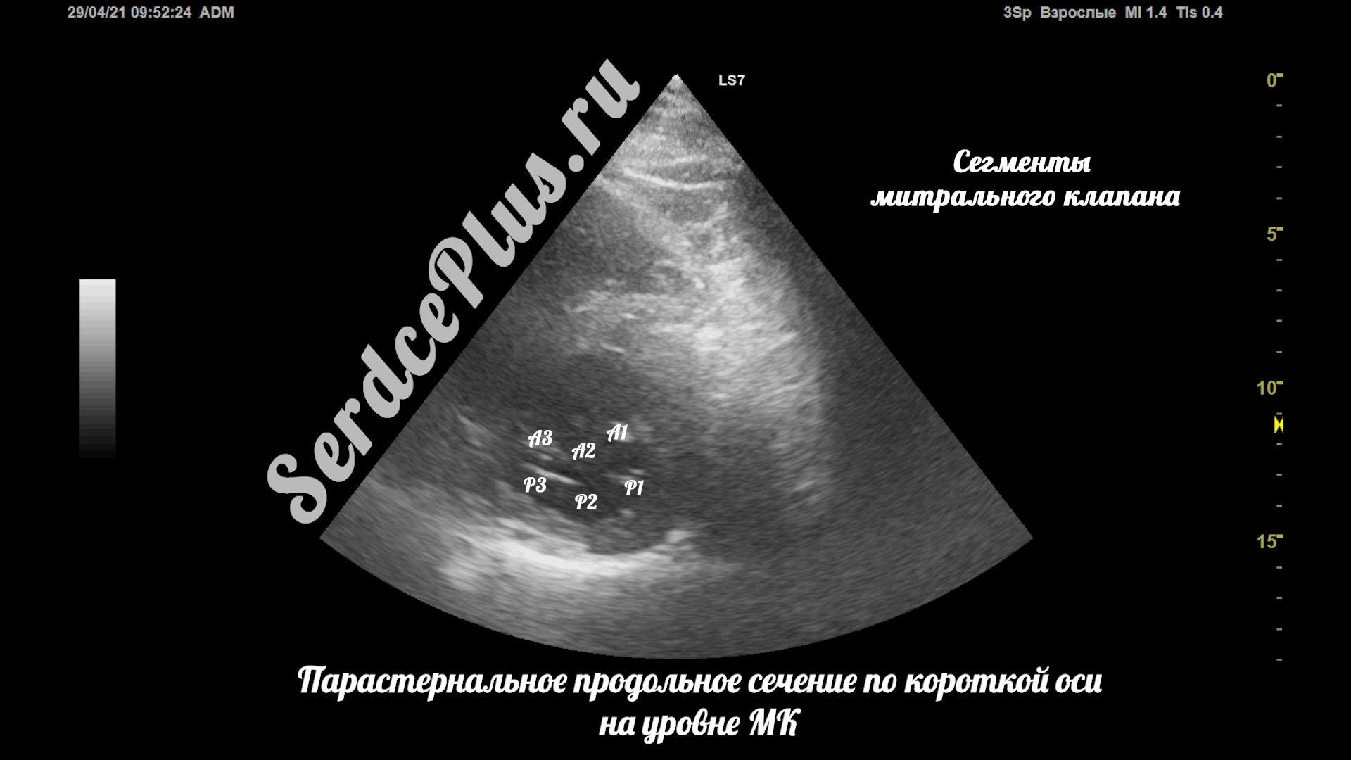 Частичный отрыв хорд митрального клапана на эхокардиографии