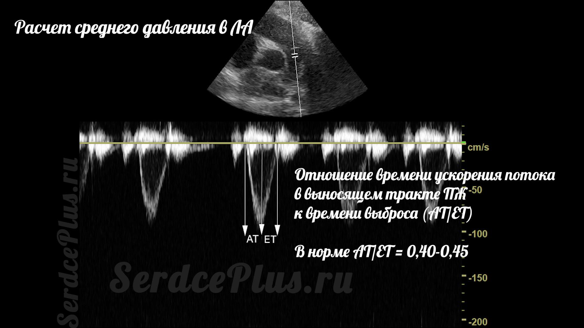 Измерение среднего и систолического давлений в легочной артерии на ЭхоКГ