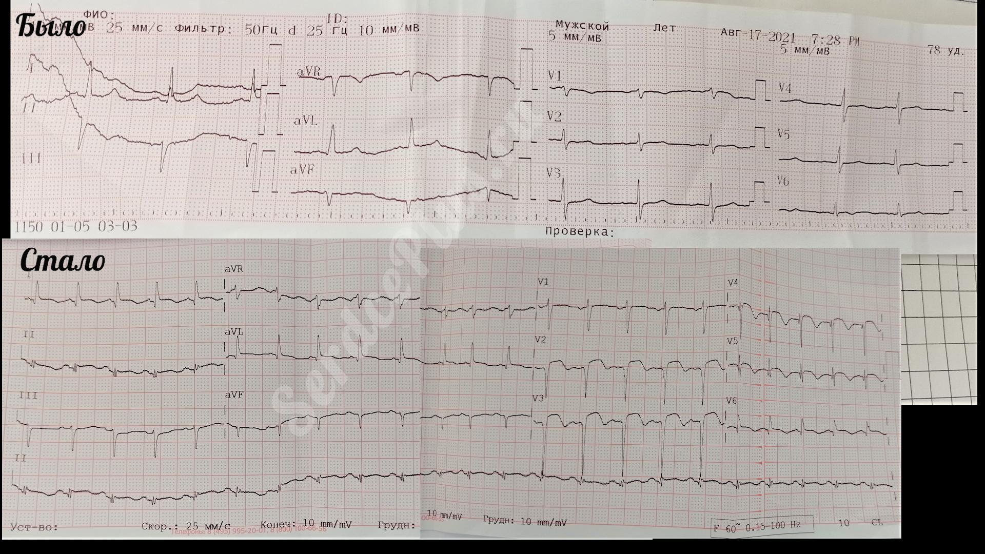 Инфаркт миокарда на эхокардиографии